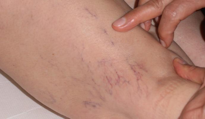 Terapia Sclerosante (SCLEROTERAPIA)